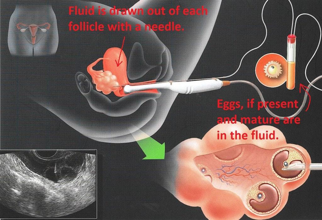 In Vitro Fertilisation (IVF) - Sunshine Coast & Bundaberg