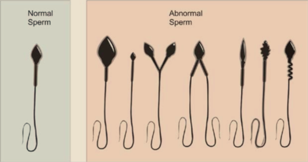 normal sperm and abnormal sperm
