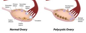 Image of a normal ovary and polycystic ovary syndrome; How your fertility is affected by PCOS and Type 2 diabetes.