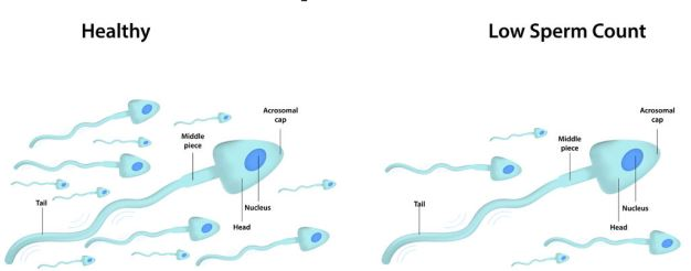 Top tips on how to improve sperm count and motility